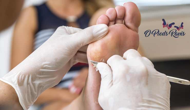 Réduction du ponçage et callosité du pied